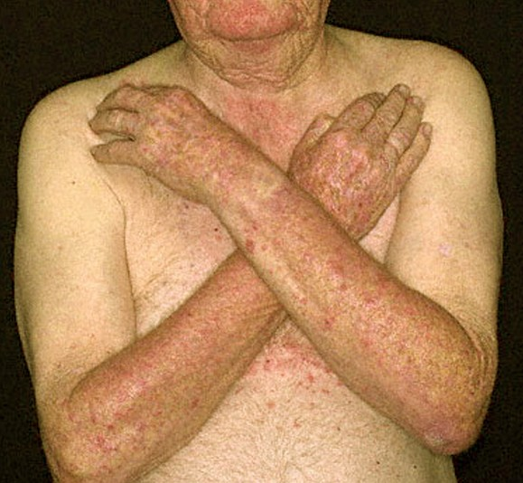 Itchy After Tanning Bed 28 Images Skin Rash From