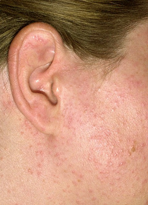 Sun Poisoning Rash Pictures Causes Treatment Home
