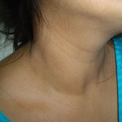 Underactive Thyroid Symptoms in Women, Men