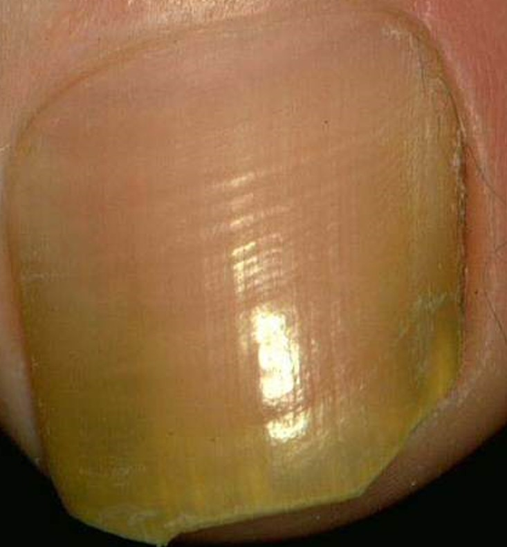area of the toenail . After careful removal of all of the fungus ...