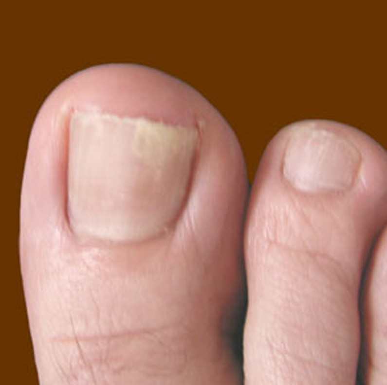 Types of toenail fungus pictures - Awesome Nail