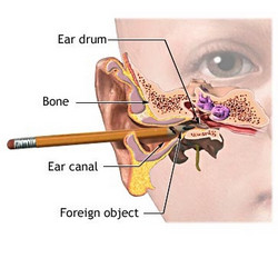 How to Clear a Clogged Ear