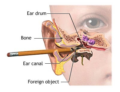 clogged ear picture